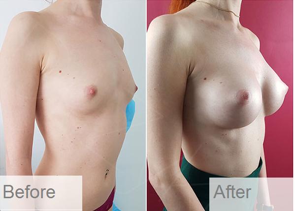breast aug 2